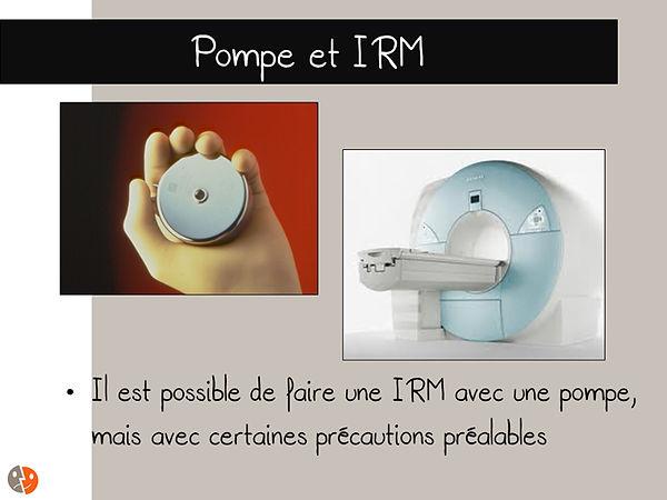 Pompe et IRM