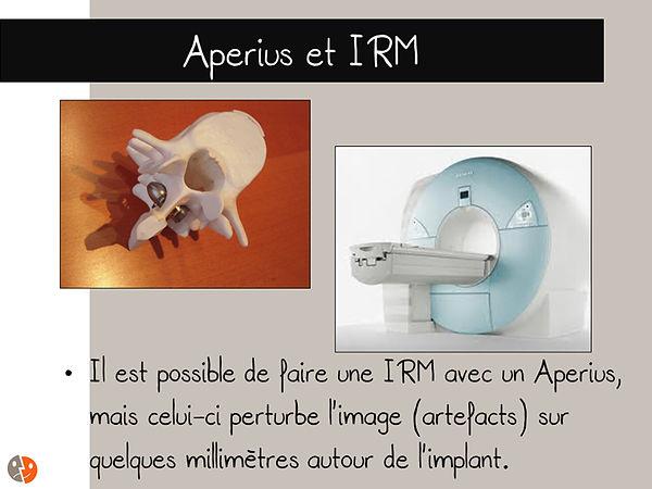 Aperius et IRM