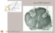 DREZ: anatomie de la lésion (post-mortem)