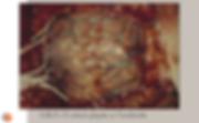 Grille corticale: Grille 8x8 en place