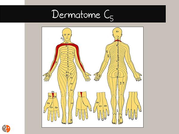 Dermatome C5