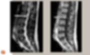 Neurinome lomaire (schwanome): IRM sagittale