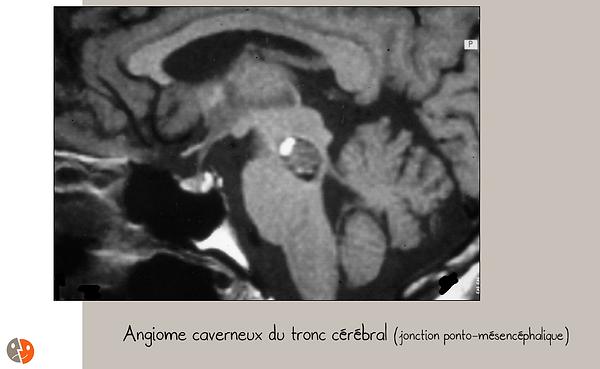 Angiome caverneux du tronc cérbral: IRM