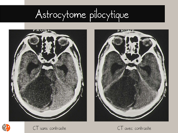 Astrocytome pilocytique: CT-scan