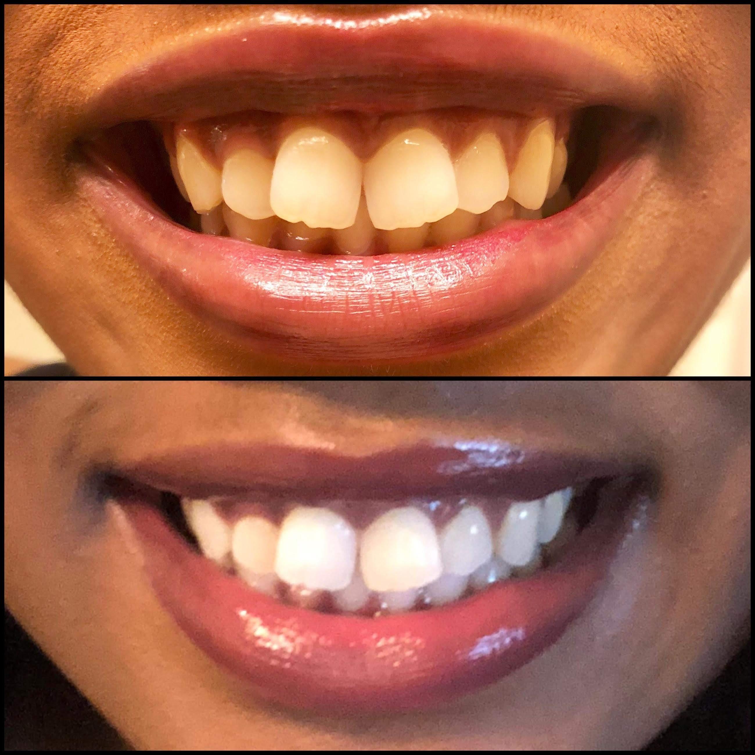 Custom Professional Teeth Whitening