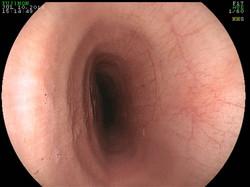 Endoscopy of an airway