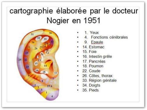 Cartographie de l'oreille par Paul Nogier