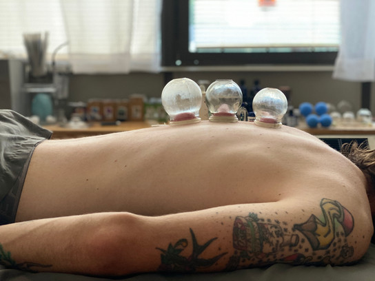 cupping-on-a-veteran.jpeg