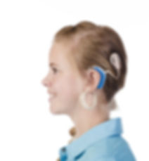 Chochlear-Implants, AudiologistsNW, Brem