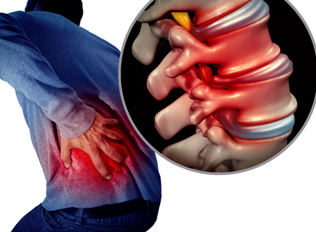 The 3 Best Physiotherapy Treatments For Sciatica