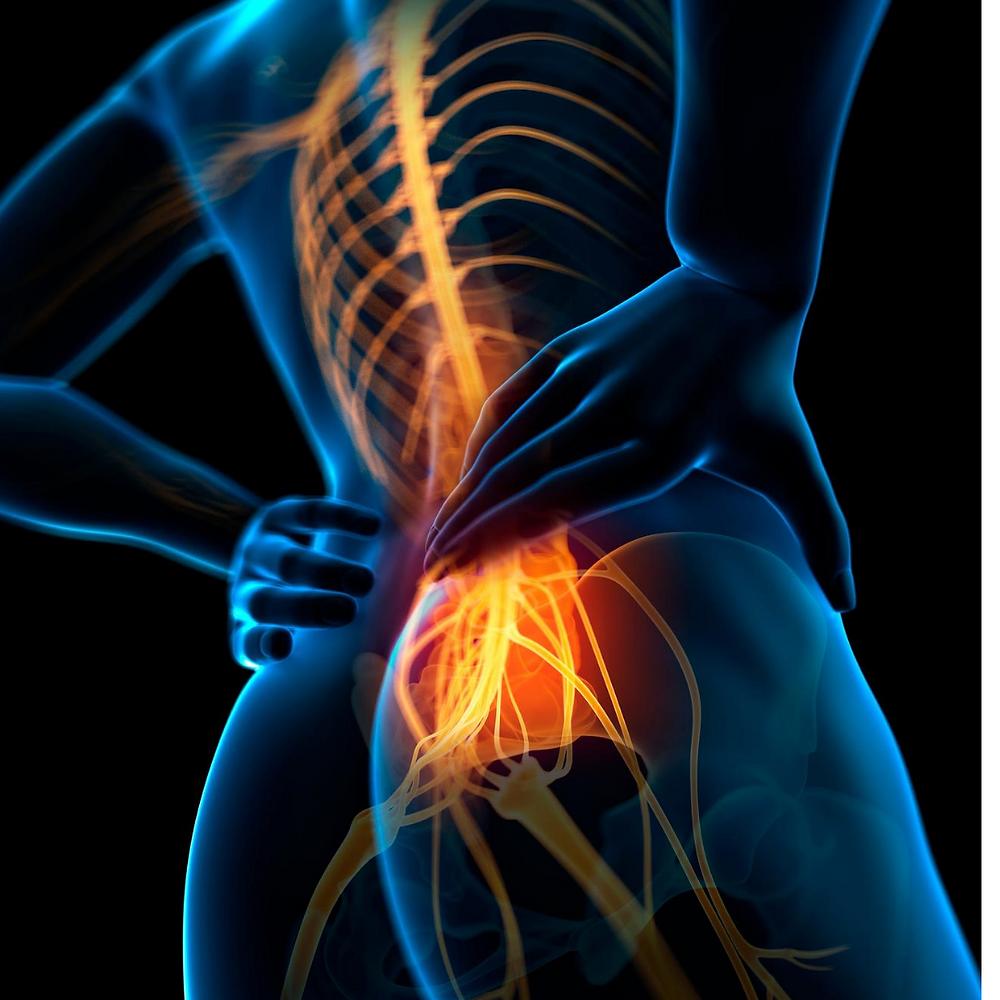 back nerve pain