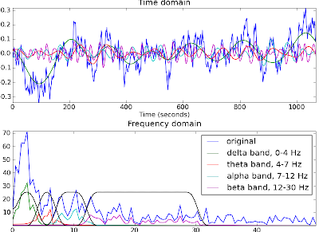 Finding Out What Does and Doesn't Work for EEG Data Processing