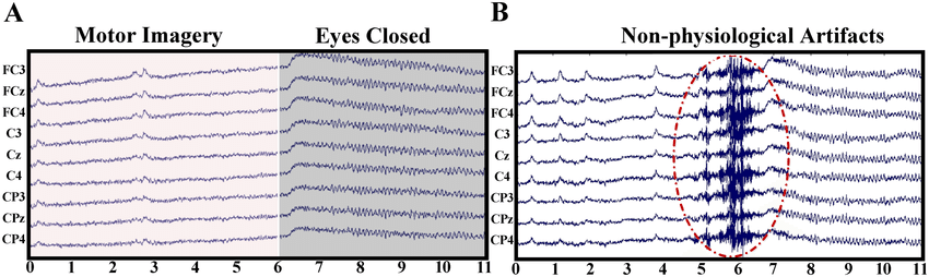 Image from: https://www.researchgate.net/publication/308173587/figure/fig4/AS:407151907491840@1474083987614/Two-examples-of-raw-EEG-data-with-different-types-of-artifacts-A-Raw-9-channel-EEG.png