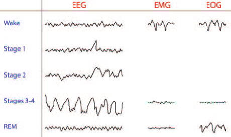https://www.researchgate.net/profile/German_Torres/publication/272479756/figure/fig2/AS:294849619218454@1447309035988/Representative-EEG-EMG-and-EOG-readouts-during-an-awake-and-sleep-cycle-Beta-waves.png