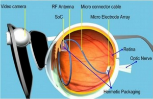 Image from http://164.67.24.13/wordpress/news/nsf-news-artificial-retina-receives-fda-approval/