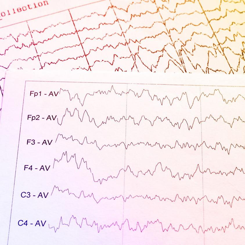 Workshop #2 - Understanding & Analyzing EEG Data