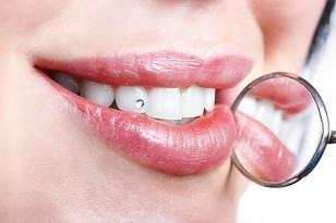 teeth1_edited.jpg