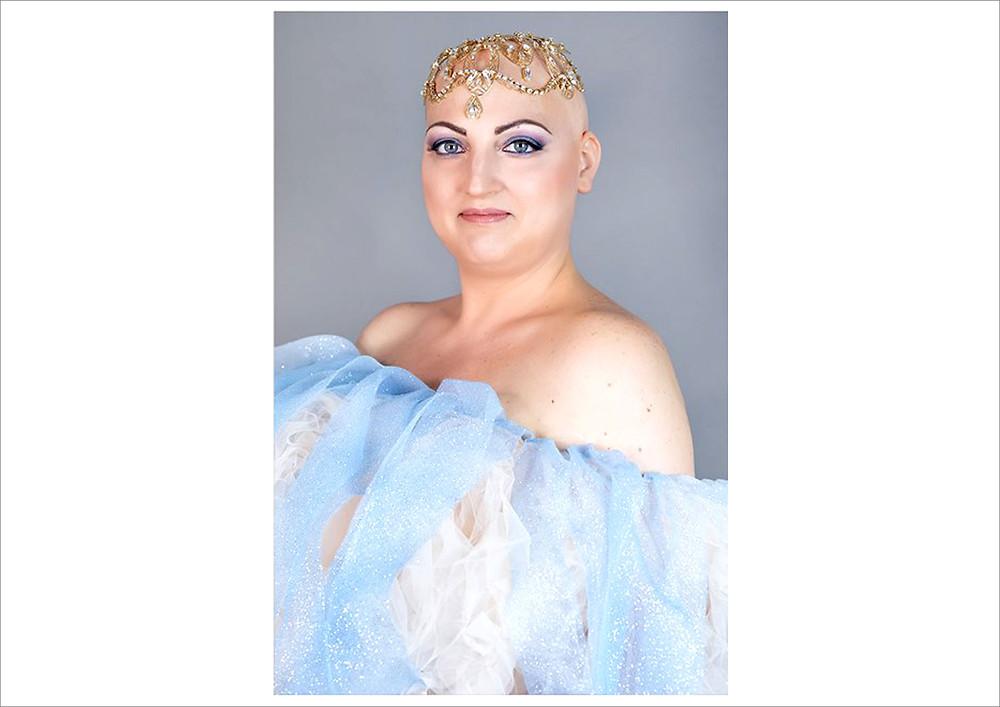 Alopecia beauty