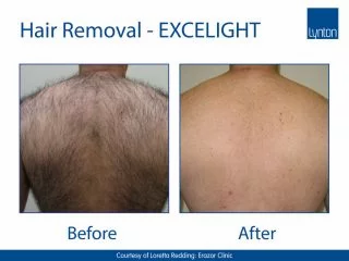 EXCELIGHT-BA-Hair-Removal-2-Back-Copy-32
