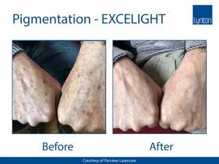 ExcelightBApigmentationHands-320x240.jpg