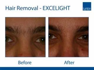 Lumina-BA-Hair-Removal-Eyebrow--320x240.