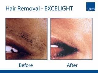 Lumina-BA-Hair-Removal-Lip--320x240.jpg