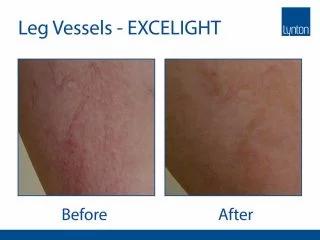 EXCELIGHT-BA-Vascualr-Leg-Vessels--320x2
