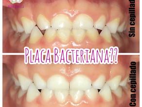 Qué es la Placa Bacteriana?