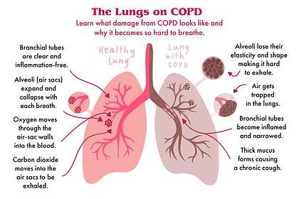 LungsType.jpg