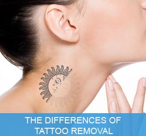 Laser Hair Removal | Florida | Eclipse Wellness Center