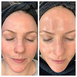 HydraFacial-Treatment-Before-and-After-Photos-03.jpg