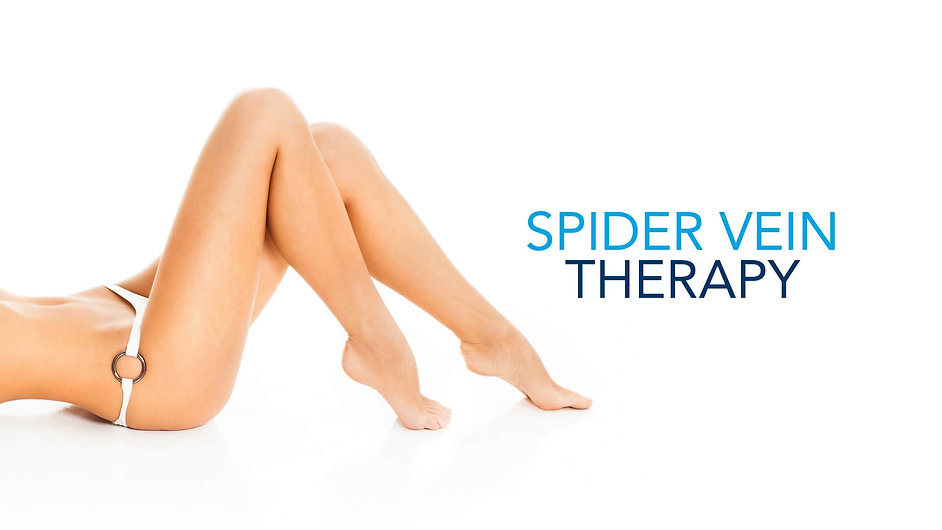 vein-and-cosmetics-spider-vein-therapy.j