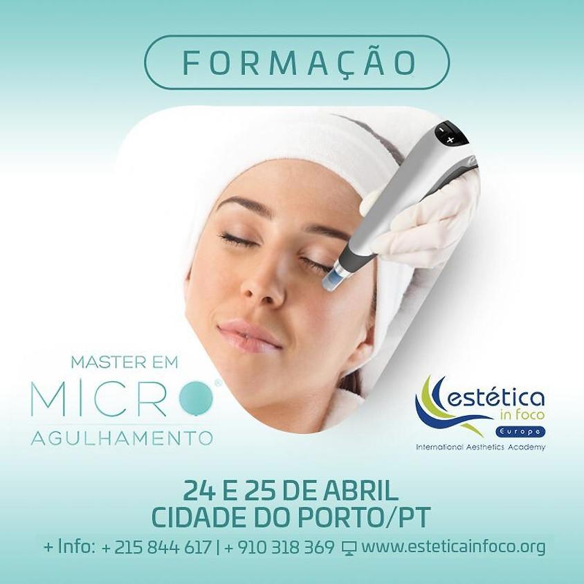 Master em Microagulhamento no Porto