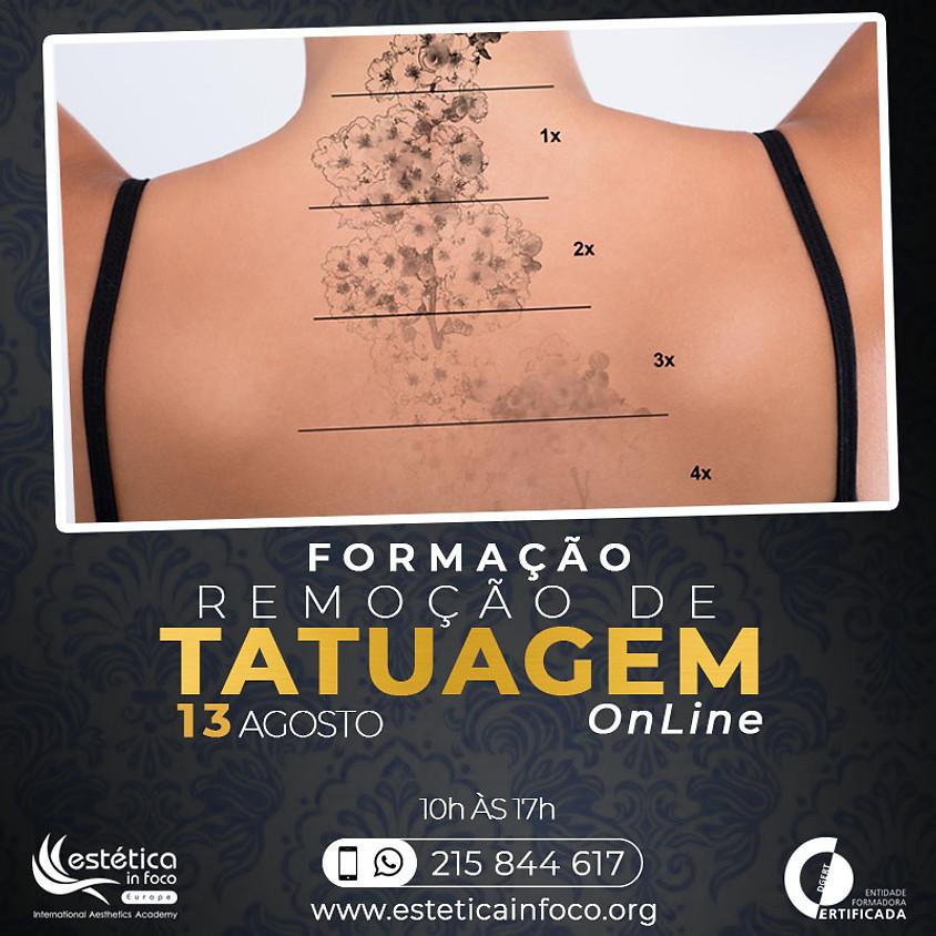 Formação Online Remoção de Tatuagem