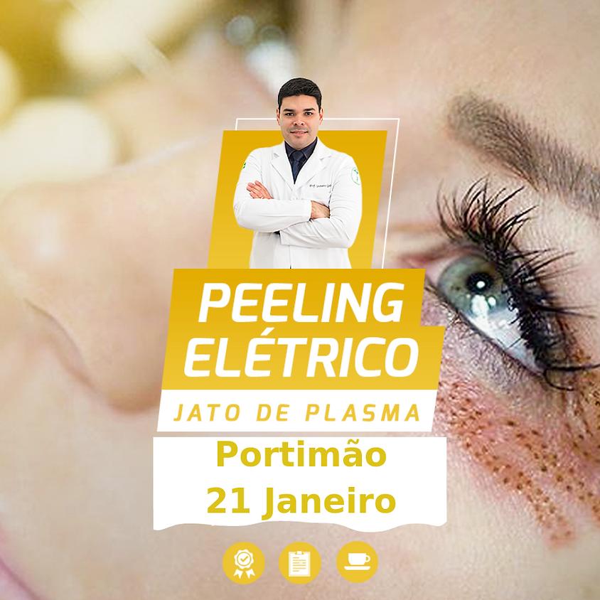 Peeling Elétrico & Jato de Plasma