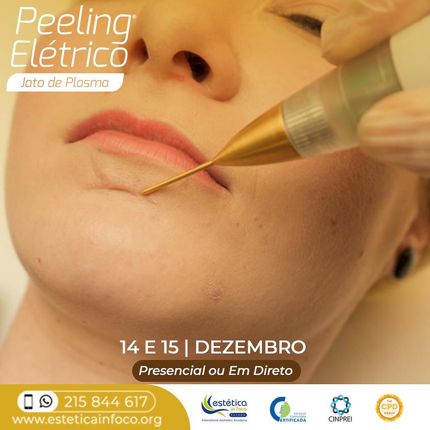 Peeling Elétrico - Jato de Plasma