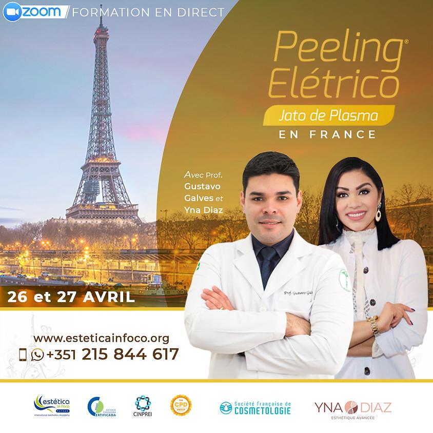 Peeling Elétrico (French)