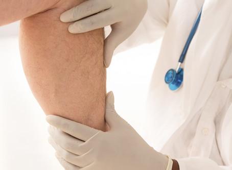 Understanding Venous Stasis Ulcers