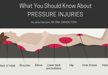 What You Should Know About Pressure Injuries