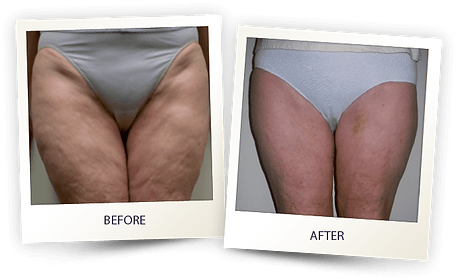 before-after-cellulite1.png