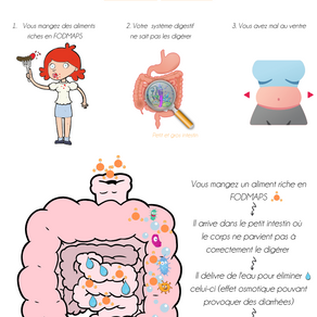 Le syndrome de l'intestin irritable - infographie