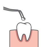 Fissure Sealants diagram
