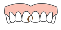 toothache from dental caries diagram