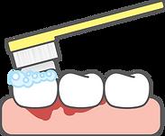 Acute gum infection diagam