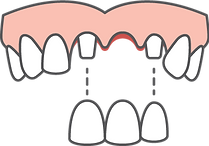 Dental bridge diagram