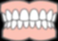 Dentures diagram