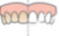 Tooth Whitening diagram