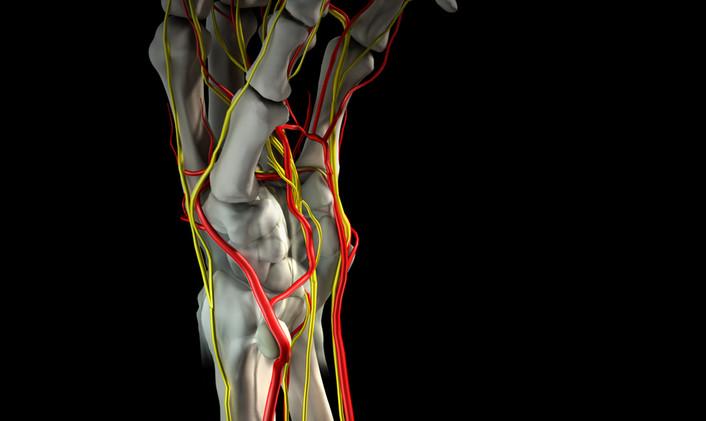 Gangion cyst anatomy