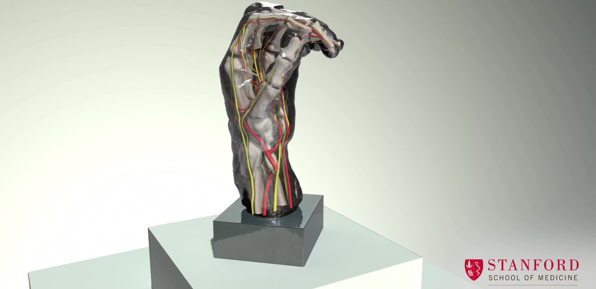 Left Hand of Eustache de Saint-Pierre (3D reconstruction)