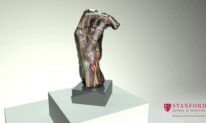 Left Hand of Eustache de Saint-Pierre (3D reconstruction)